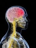 Głowa - migrena ilustracja wektor
