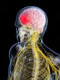 Głowa - migrena ilustracji