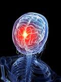 Głowa - migrena royalty ilustracja