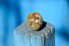 Gall bladder stone. Calculus of heterogeneous composition. Gall bladder stone. The result of gallstones. Calculus of heterogeneous composition royalty free stock photos