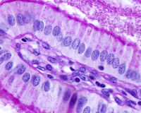 Gallbladder. Simple columnar epithelium. Simple columnar epithelium of gallbladder stained with PAS method. The striated border, basement membrane, and royalty free stock image