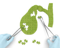 Gallbladder surgery operation (medicine puzzle concept). Gallbladder puzzle concept: hands of surgeon with surgical instruments perform gall bladder surgery as a Royalty Free Stock Images