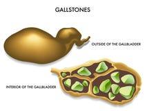 Gallensteine lizenzfreie abbildung
