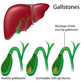 Gallstones. Eps8, gradient and mesh printing compatible Royalty Free Stock Images