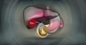 gallstones бесплатная иллюстрация