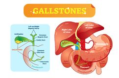 Free Gallstones Anatomical Cross Section Vector Illustration Diagram With Abdominal Cavity And Gallbladder, Bile Ducts And Duodenum. Royalty Free Stock Photo - 117447015