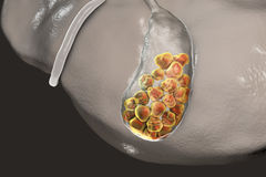 Gallstones, illustration showing bottom view of liver and gallbladder with stones Royalty Free Stock Images