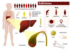Gallstones. Medical infographic Royalty Free Stock Image