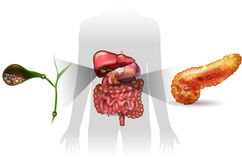 Gallstones, pancreatitis Royalty Free Stock Images