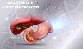 Gallstones and Pancreatitis royalty free stock images
