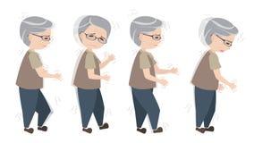 Gamal man med Parkinsons tecken stock illustrationer