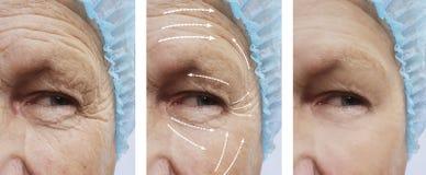 Gamal man med skrynklaborttagning på pil för tillvägagångssätt för cosmetology för framsidaresultatskillnad före och efter royaltyfri bild
