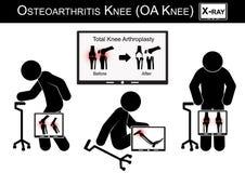 Gamala mannen smärtar på hans knä, bildskärmshowbild av sammanlagd kn för osteoarthritisen för knäarthroplasty (före och efter ki Arkivfoto