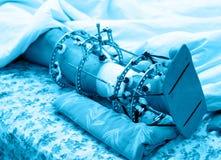 Gamba rotta in fixator esterno di Ilizarovs, apparecchiatura di Ilizarovs Immagini Stock