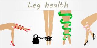 Gambe della donna con i sintomi delle vene varicose nelle pose differenti fissate Menzogne elegante, stare e posizioni di seduta  illustrazione di stock