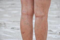 Gambe delle donne, delle cicatrici e delle vene varicose immagini stock libere da diritti