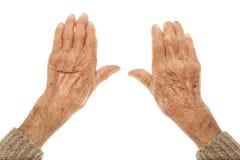 Gamla händer med artritis Arkivbilder