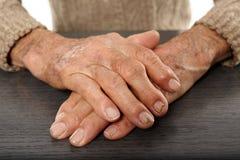 Gamla händer med artritis Royaltyfria Bilder