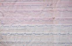 Gammal ECG Arkivbilder