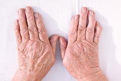 Gammal kvinnas händer geformed från reumatoid artrit Royaltyfri Bild