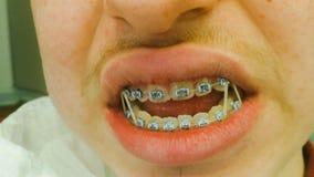 Ganci dentari con gli elastici Fotografia Stock