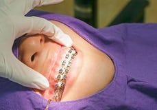 Ganci ortodontici Fotografia Stock Libera da Diritti