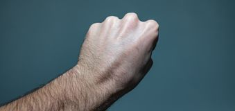 Ganglion Cyst Lump On Hand. Close up shot of a white caucasian man left hand with a ganglion cyst lump stuck between the dorsal digital nerves or ulnar nerve royalty free stock photography
