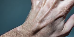 Ganglion Cyst Lump On Left Hand. Close up shot of a white caucasian man left hand with a ganglion cyst lump stuck between the dorsal digital nerves or ulnar royalty free stock images