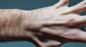 Ganglion Cyst Lump On Left Hand. Close up shot of a white caucasian man left hand with a ganglion cyst lump stuck between the dorsal digital nerves or ulnar stock images