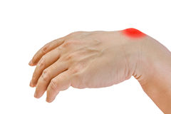 Ganglion cyst. On man hand isolated on white background royalty free stock images