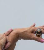 Ganglion Cyst. On a woman`s wrist stock photos