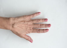 Ganglion Cyst. On a woman`s wrist stock photography