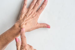 Ganglion Cyst. Women pointing out ganglion cyst on her wrist stock photography