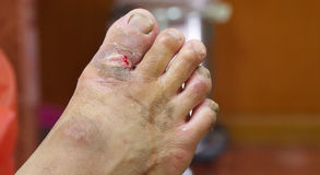 Gangrene wound. Foot gangrene from diabetes wound Royalty Free Stock Photography