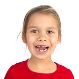 Gap-Toothed Girl. Cute young girl with several teeth missing smiling happily, isolated on white stock photo