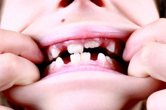 Gap Toothed Royalty Free Stock Photos