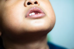 Garçon asiatique avec les dents cassées Image libre de droits