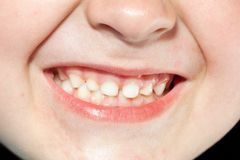 Garçon avec des dents photos stock