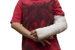Garçon avec du gypse autour du bras gauche cassé Image libre de droits