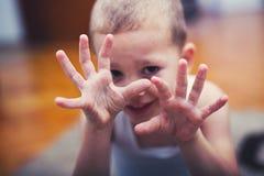 Garçon avec la main de symptômes, fièvre aphteuse photographie stock