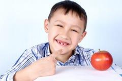 Garçon avec la pomme sans plusieurs dent Photographie stock