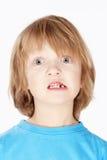 Garçon avec les cheveux blonds montrant ses dents de lait absentes Image libre de droits