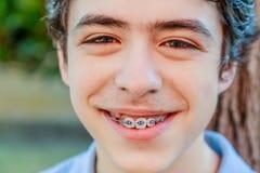 Garçon d'acné montrant l'appareil orthodontique Photo stock