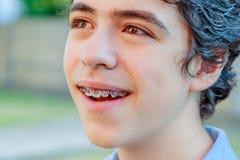 Garçon d'acné montrant l'appareil orthodontique Photographie stock libre de droits