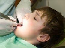 Garçon dans le traitement dentaire photos stock