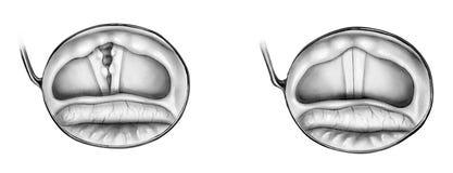 Garganta - epiglotis normal y dañada Fotografía de archivo libre de regalías