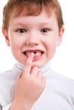 Garçon montrant ses dents de lait absentes Images stock