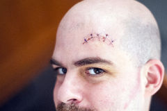 A gash above the eyebrow Royalty Free Stock Photo