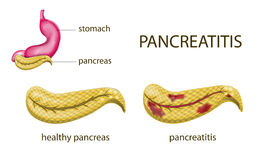 Gaster and pancreatitis Stock Photography