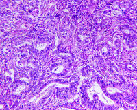 Gastric adenocarcinoma of a human Stock Images